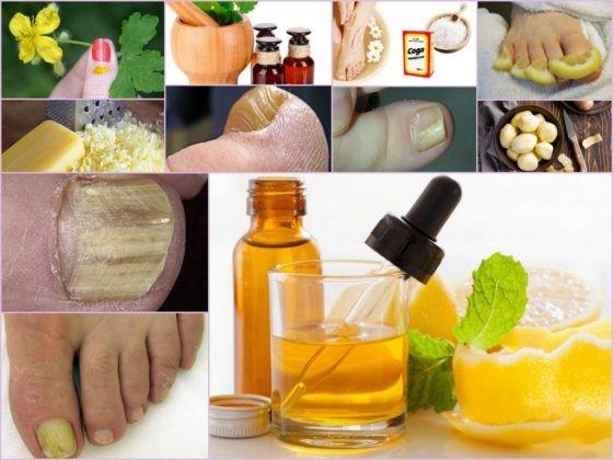 Грибок ногтя на большом пальце ноги: лечение и фото