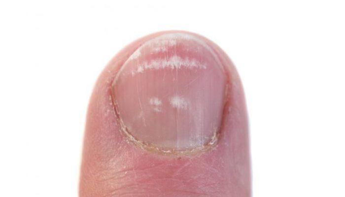 Различные виды грибка ногтей на ногах и руках - вид грибка по фото