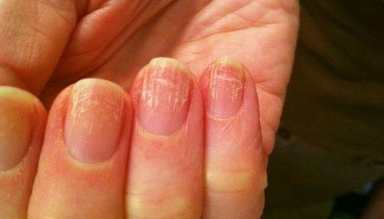 Симптомы грибка ногтей на руках