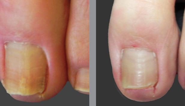 Грибок ногтей на ногах: симптомы, первые признаки и причины