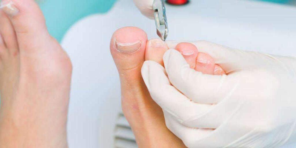 Как вылечить грибок ногтей на ногах в домашних условиях