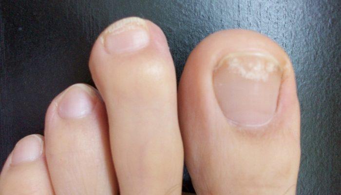 Первые симптомы грибка ногтей на ногах, признаки и лечение