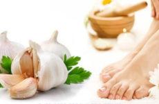 Рецепты лечения грибка ногтей чесноком
