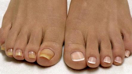 Народное лечение грибка ногтя: запущенная форма
