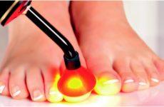 Новое в лечении грибка ногтей ног