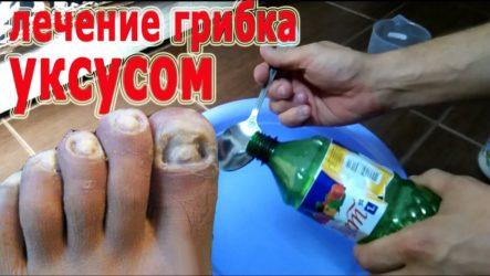 Ванночка с уксусом от грибка ногтей