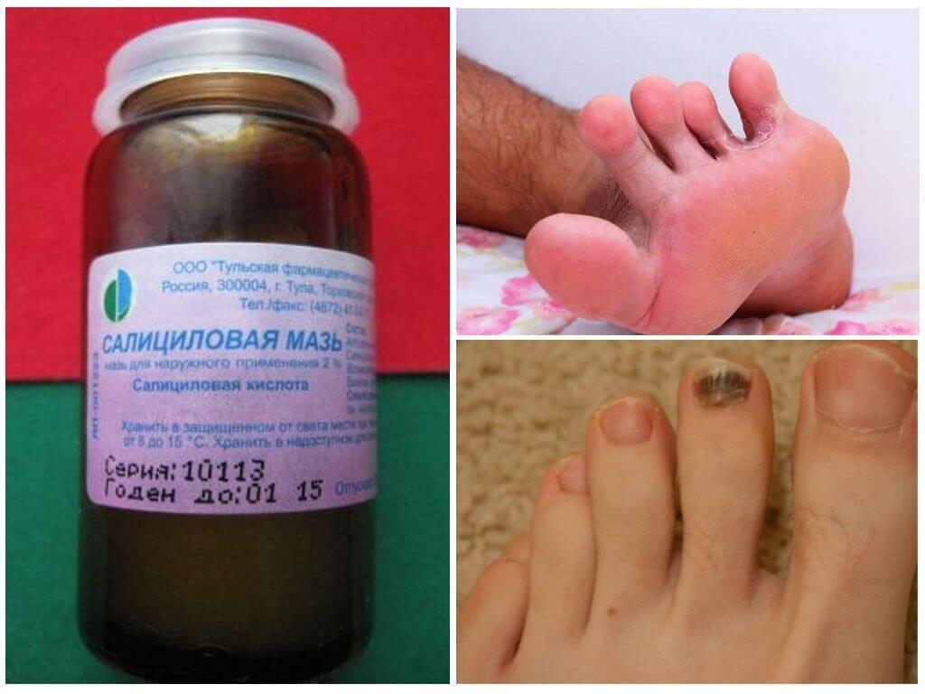Лечение грибка ногтей салициловой мазью
