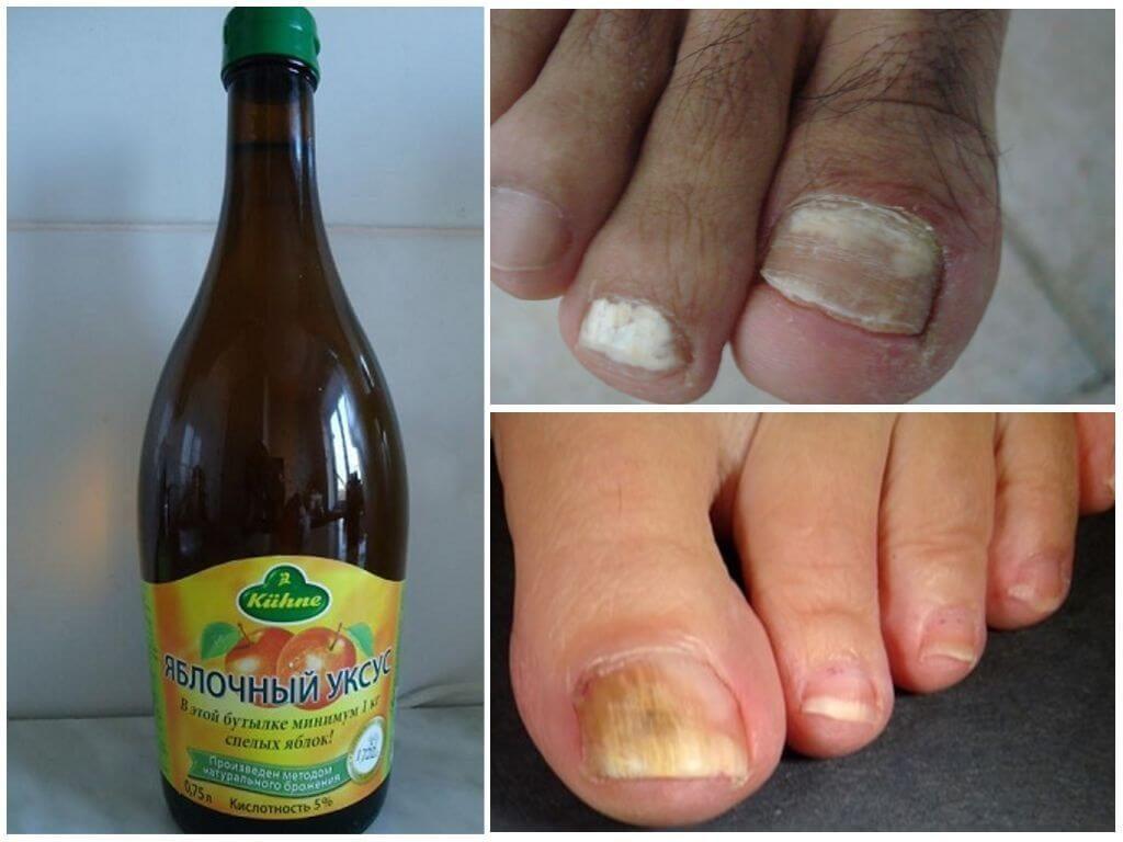 Уксус для лечения грибка ногтей