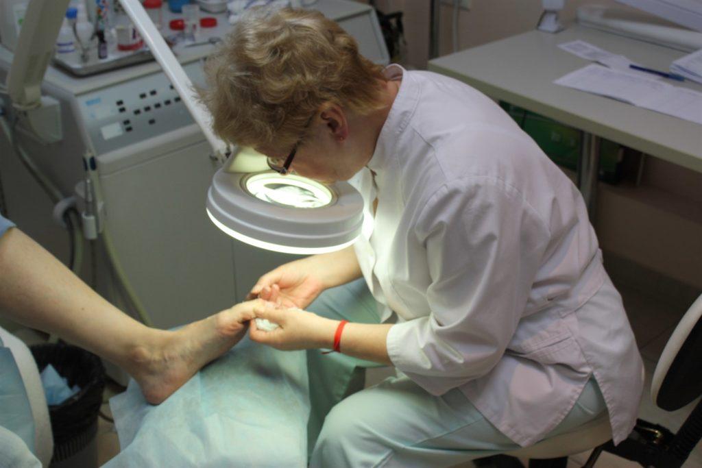 Врач, занимающийся грибком ногтей
