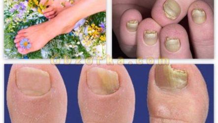 Различные виды грибка ногтей на ногах и руках — вид грибка по фото