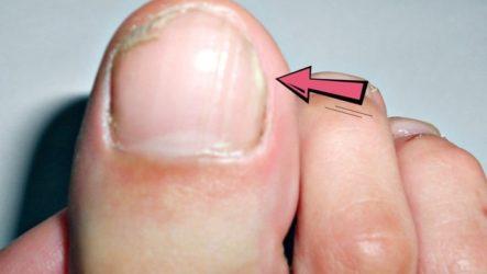 Профилактика и лечение грибка ногтя на большом пальце ноги