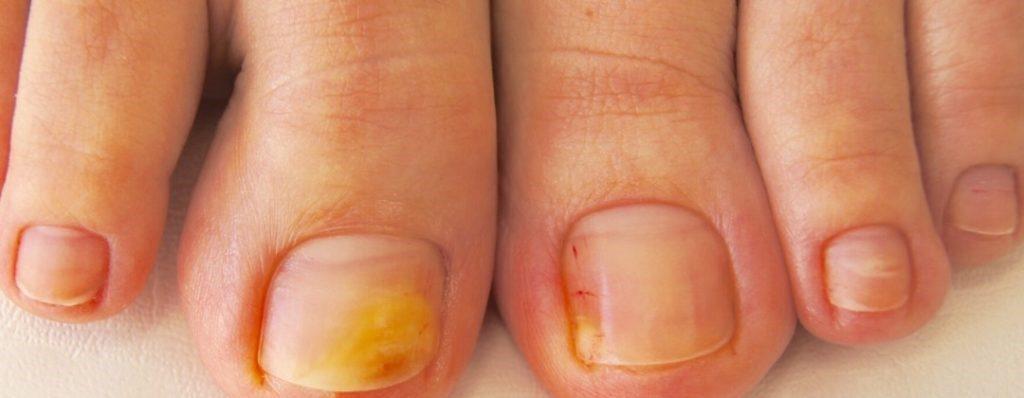 грибок ногтей на ногах симптомы